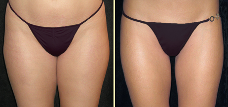 San Francisco Liposuction of Hips