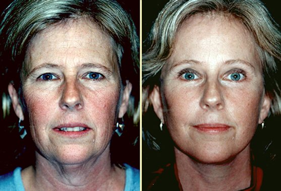 Facelift Before & After Photos