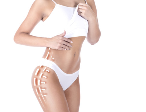 How Long Does A Tummy Tuck Recovery Take