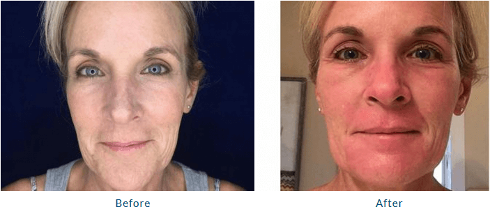 Laser Skin Resurfacing Bay Area