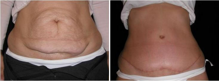 tummy tuck before & after photo Greenbrae Walnut Creek Bay Area