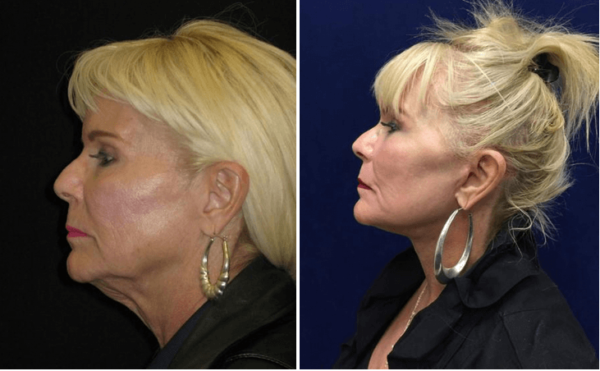 Facelift Walnut Creek CA