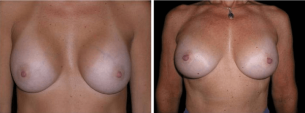 breast implant surgery san francisco
