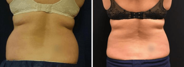 coolsculpting san francisco