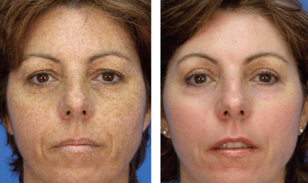 microlaserpeel Walnut Creek