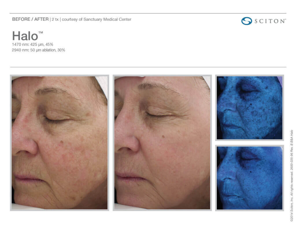 halo-laser-before-after_hyperpigmentation