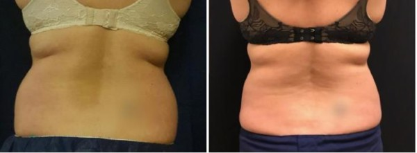 Coolsculpting Walnut Creek