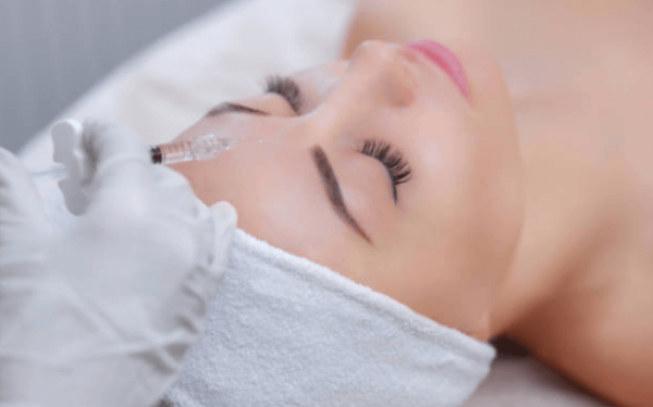 Dermal Fillers Walnut Creek