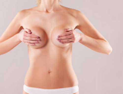 Should I Get a Breast Lift with or without Implants?